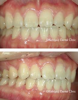 っ 歯 すき 乳歯 「すきっぱ」「空隙歯列」とは、その原因・特徴・治療法について