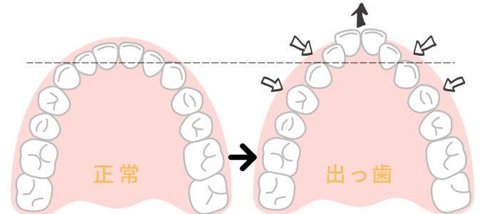 頬杖や横向き寝による歯並びの悪化
