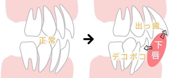 唇の巻き込みによる歯並びの悪化