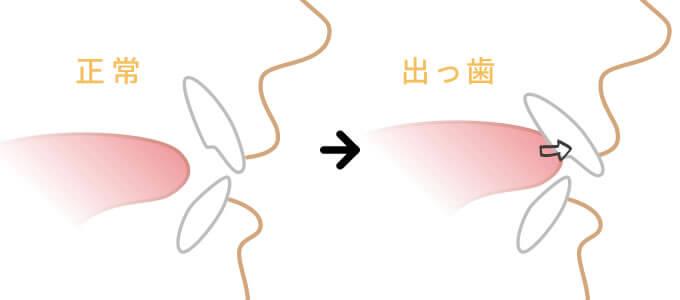 舌の癖よる歯並びの悪化